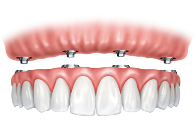 Dental Implants in Toronto, ON