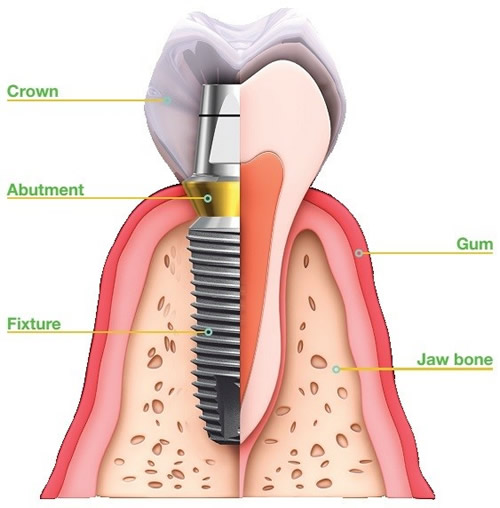Dental Implants Restore Your Smile Toronto On